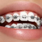 Braces - Orthodontics